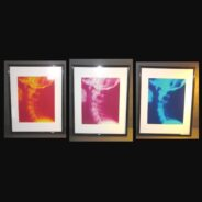 "Cervical Art Spine X-ray Prints 11"" x 14"" matted"