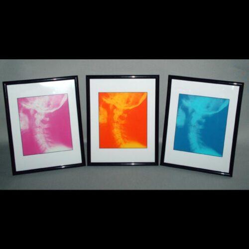 Chiropractic Framed Prints Chiropractic Art