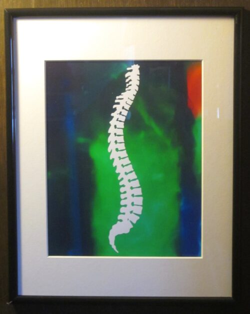 Framed Chiropractic Spine Picture