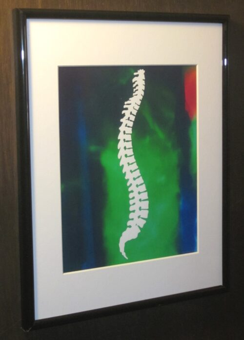 Chiropractic Framed Print White Spine