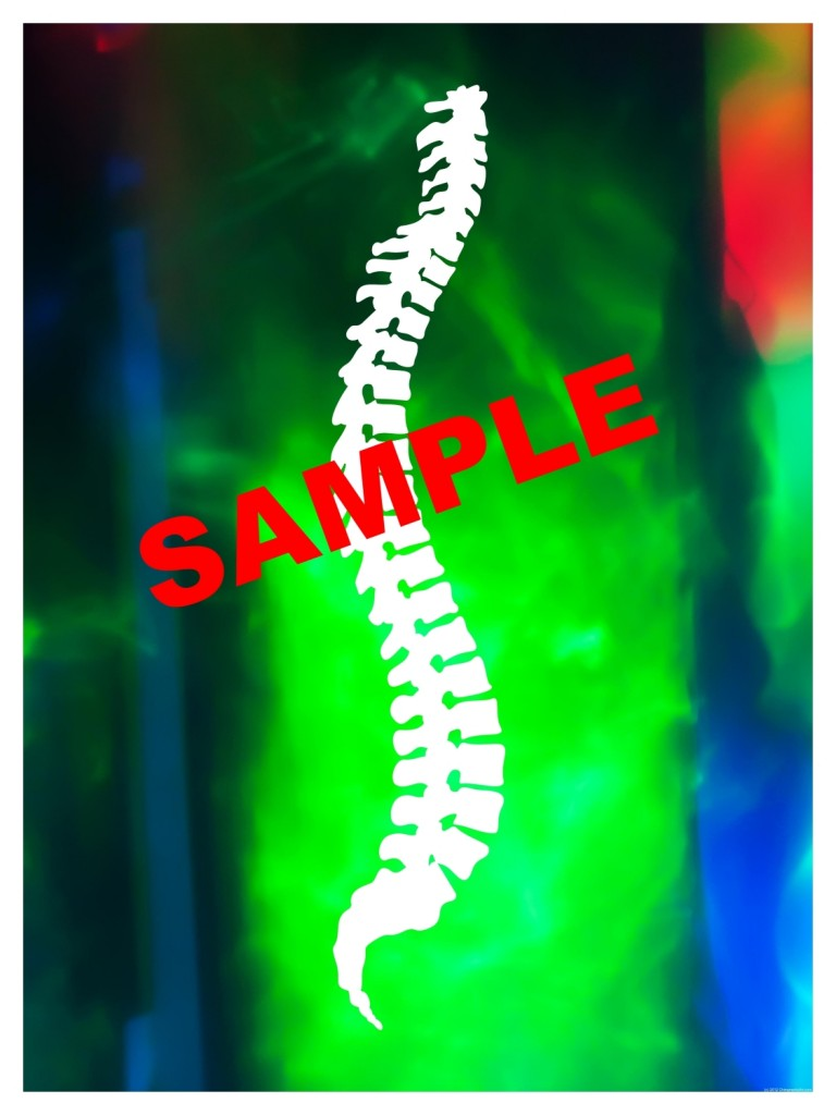 Chiropractic Posters - Sample image of spine poster