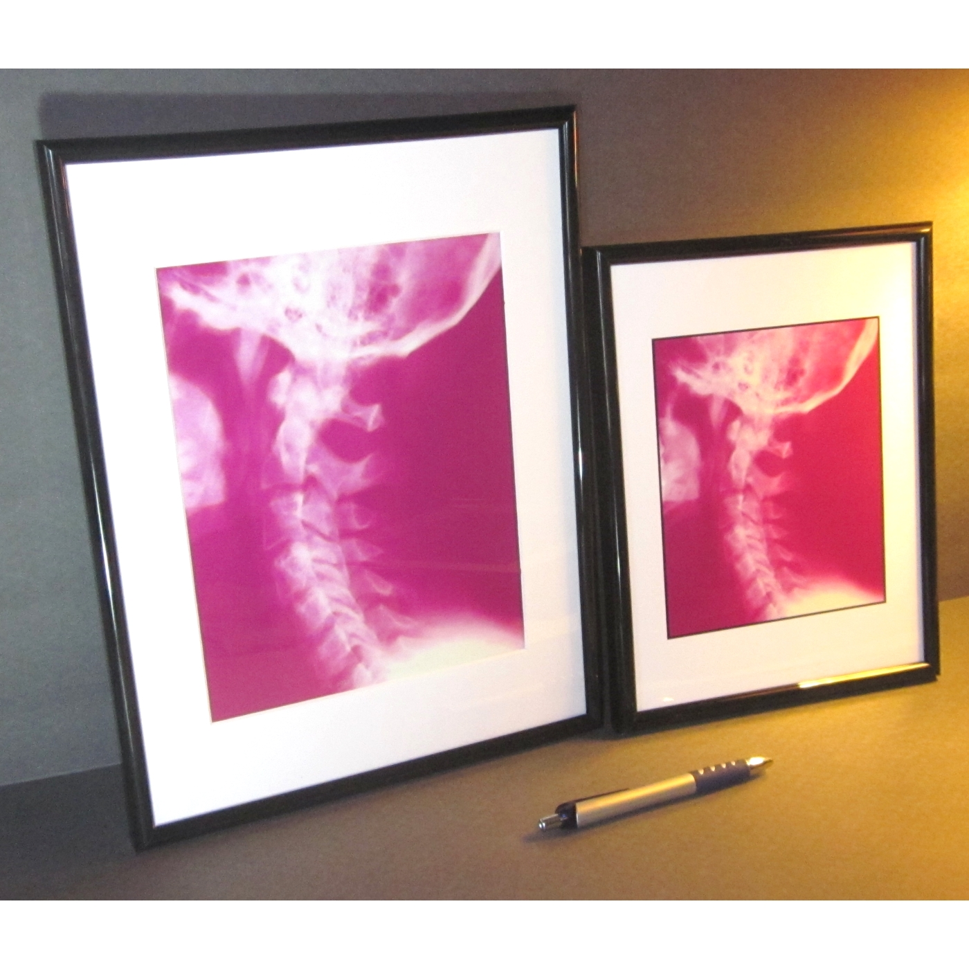 chiropractic framed artwork 11 x 14 compared to 85 x 11