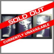 Chiropractic Art Cervical Spine X-ray Tri Window Frame Black and White Sold Out