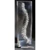 Chiropractic Spine Vase