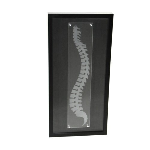 Spine framed wall art shadowbox chiropractic wall decor