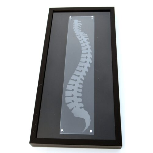 Chiropractic spine shadowbox framed spine